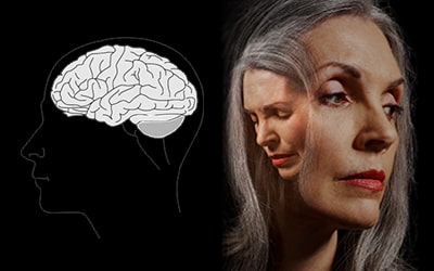 Woman with a neurological disorder, our natural health services and alternative treatments for neurological disorders