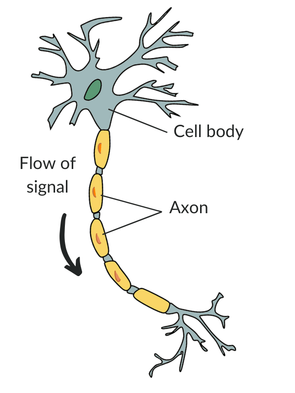 Anatomy of a neuron cell highlighting commonly damaged axons in patients with spinal cord injuries