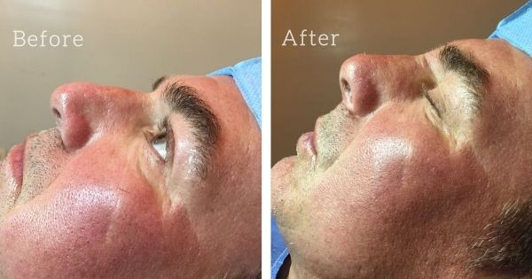 Non-surgical nose job by Dr Juan Ortega at Holistic Bio Spa